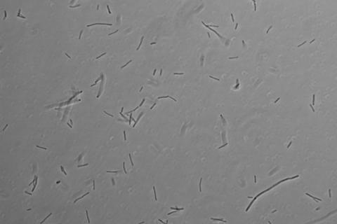 Thermus scotoductus cells